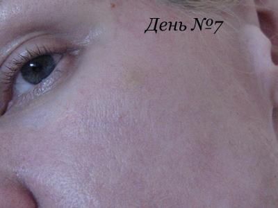 лазерная шлифовка лица