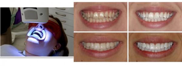 Как отбелить чувствительные зубы эмалью