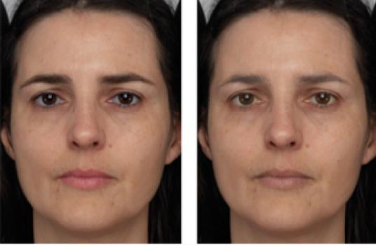 """Два одинаковых лица за исключением того, что контраст был увеличен на левом фото и уменьшен на правом. За счет этого """"левое"""" лицо смотрится моложе"""